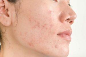 dermatology acne scars