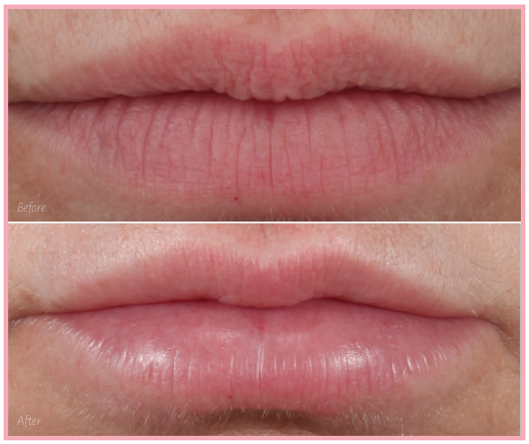 Restylane Kysse in the upper lip
