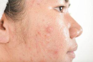 dermatololgy acne scars
