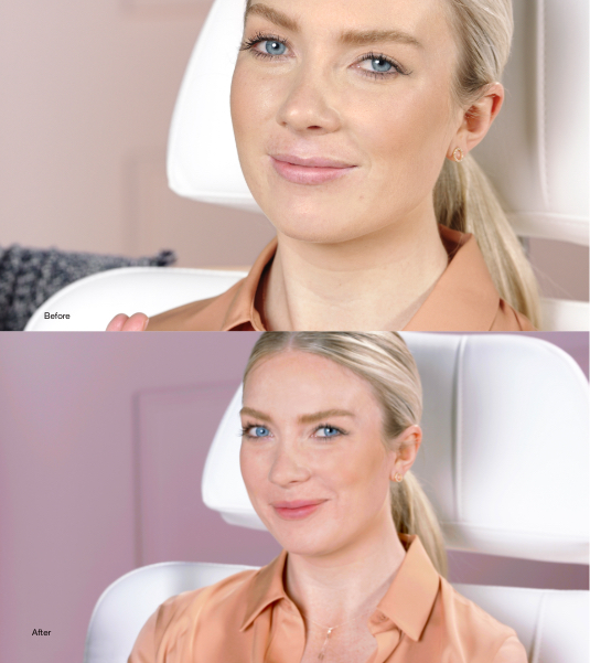 Use Restylane Kysse to Enhance the Appearance of Your Lips