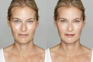 dermatology before and after treatment