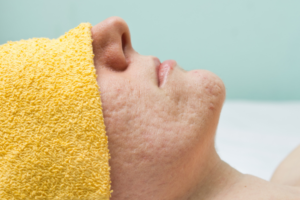 person with acne scars