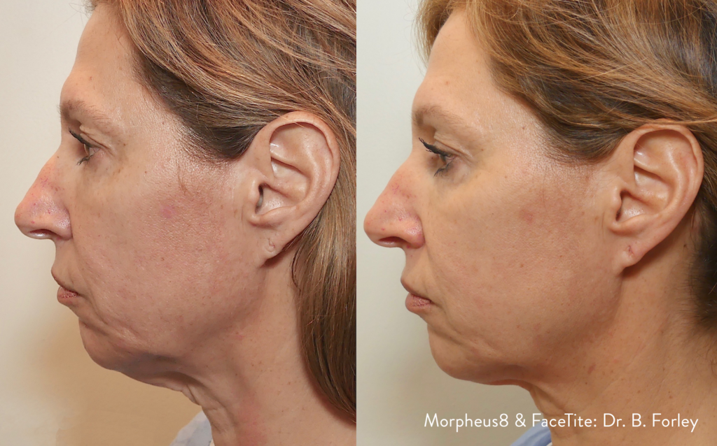 Rejuvenate Aging and Damaged Skin with Morpheus 8