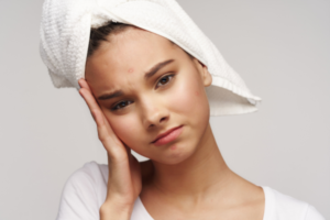 woman distressed about acne
